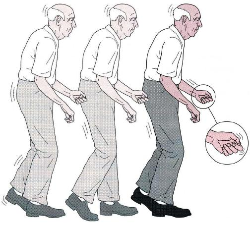 Obat Tradisional Parkinson