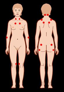 Acupuntura na Fibromialgia