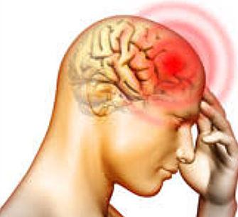 Tipos de Cefaléia e Tramentos pela Acupuntura – Parte 2