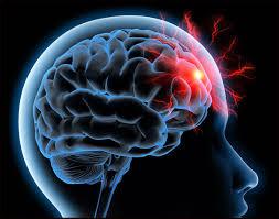 Acupuntura no Acidente Vascular Cerebral (AVC) – Parte 1