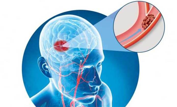 Acupuntura no Acidente Vascular Cerebral – Parte 2